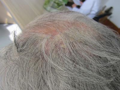 头部患有牛皮癣可以做手术吗